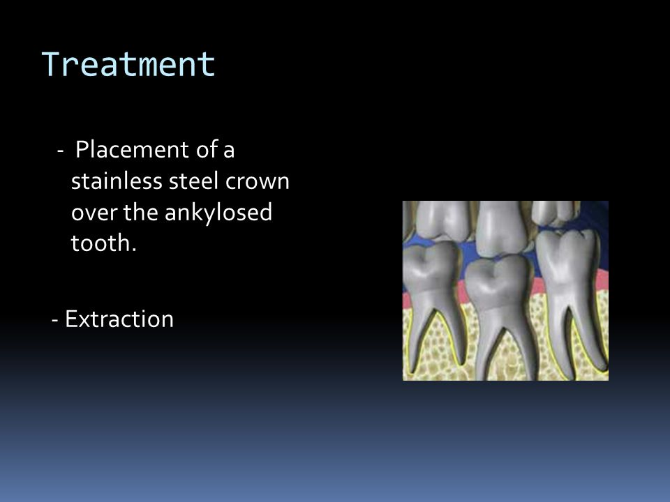 Treatment - Placement of a stainless steel crown over the ankylosed tooth. - Extraction