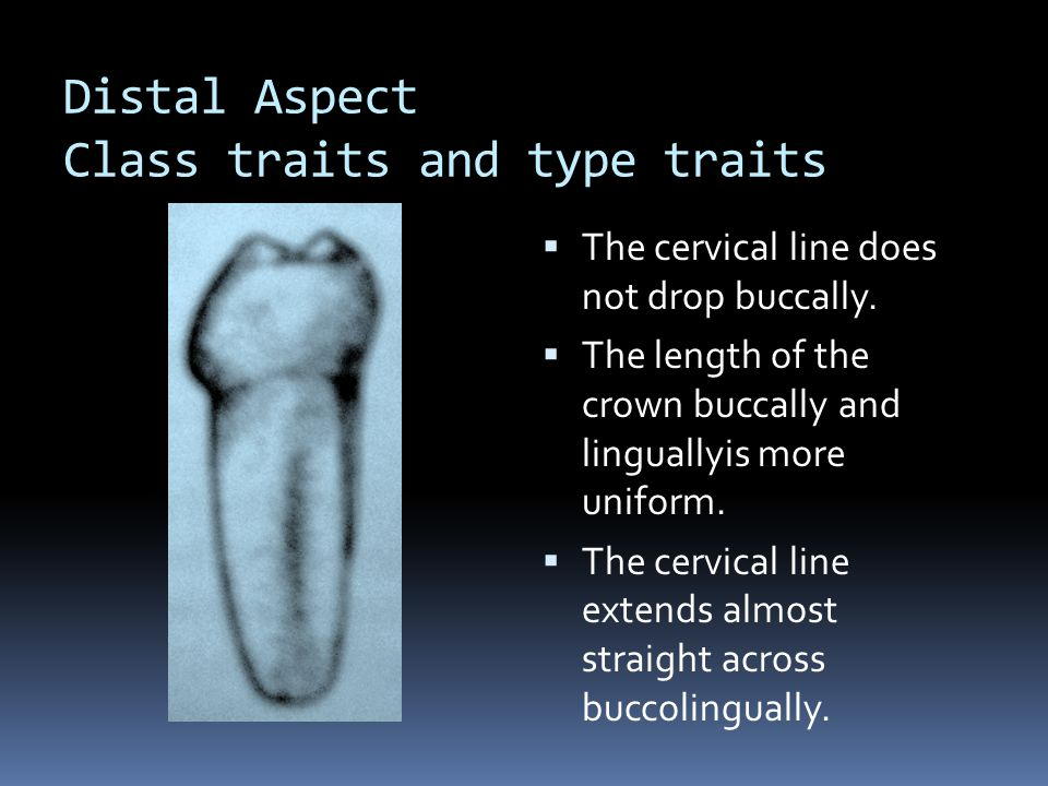 Distal Aspect Class traits and type traits