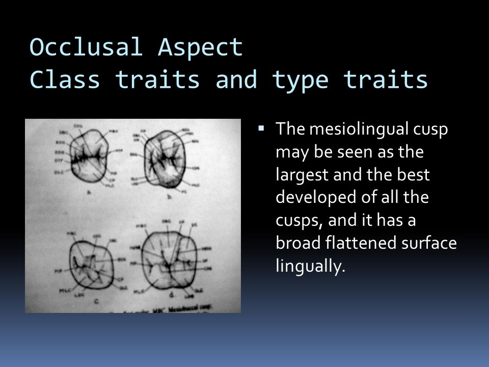 Occlusal Aspect Class traits and type traits
