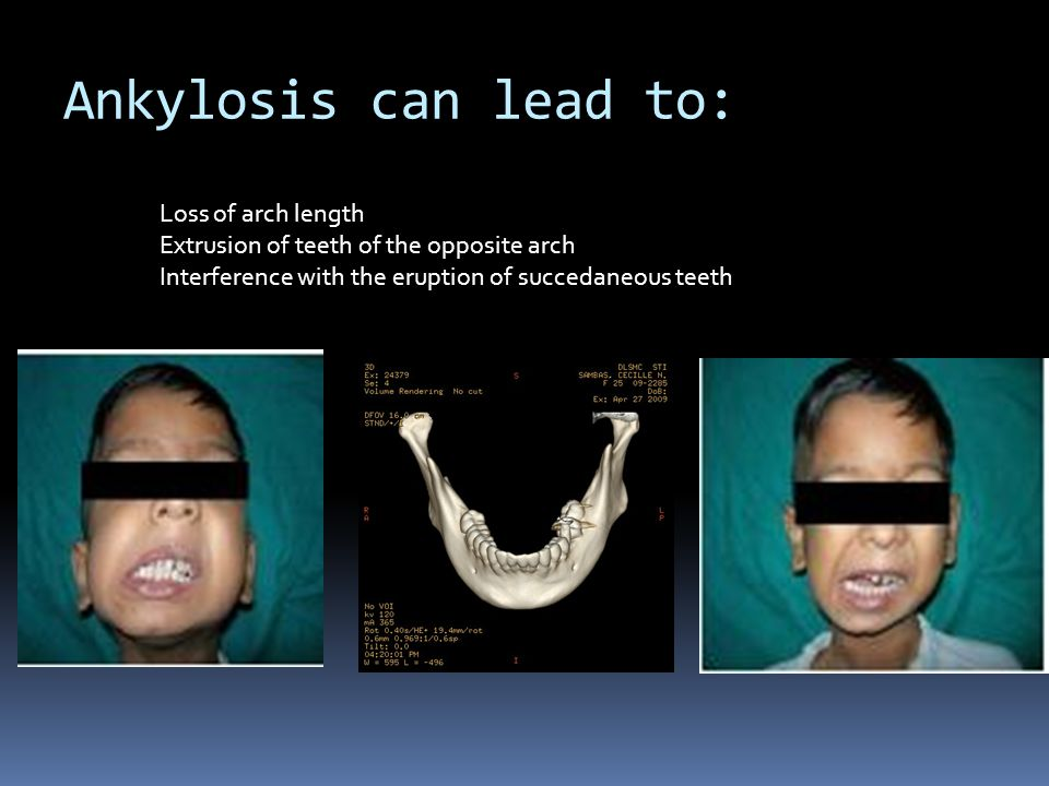 Ankylosis can lead to: Loss of arch length
