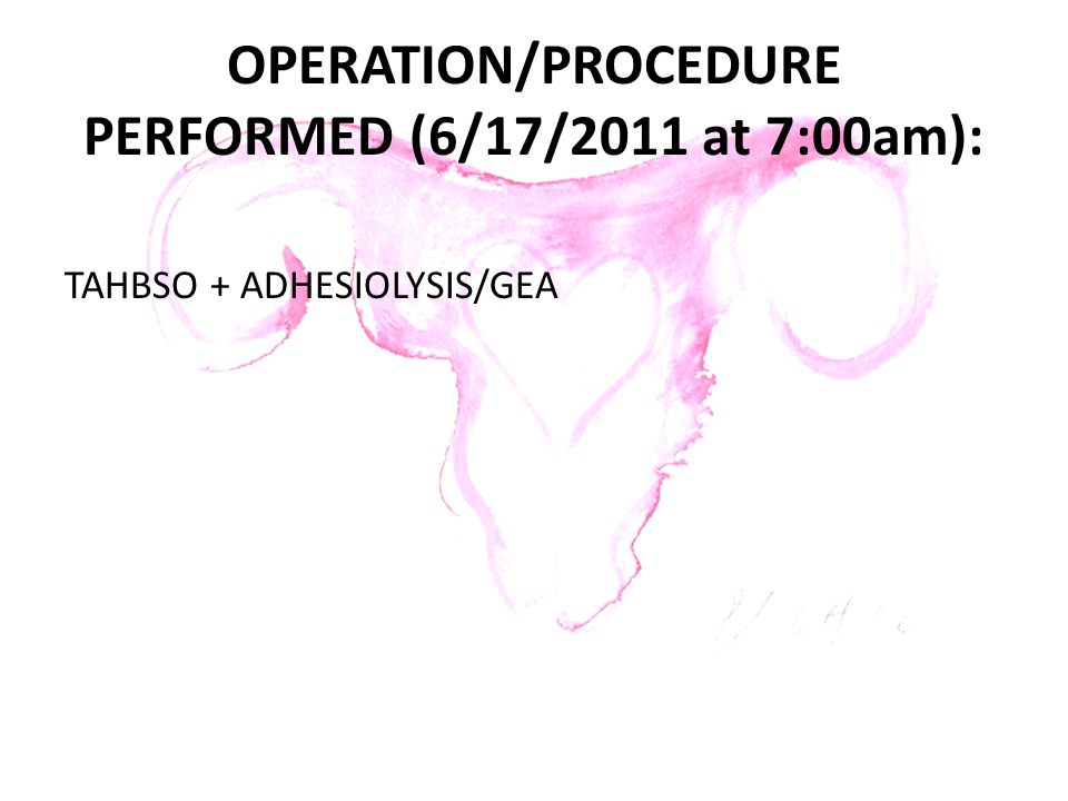 OPERATION/PROCEDURE PERFORMED (6/17/2011 at 7:00am):