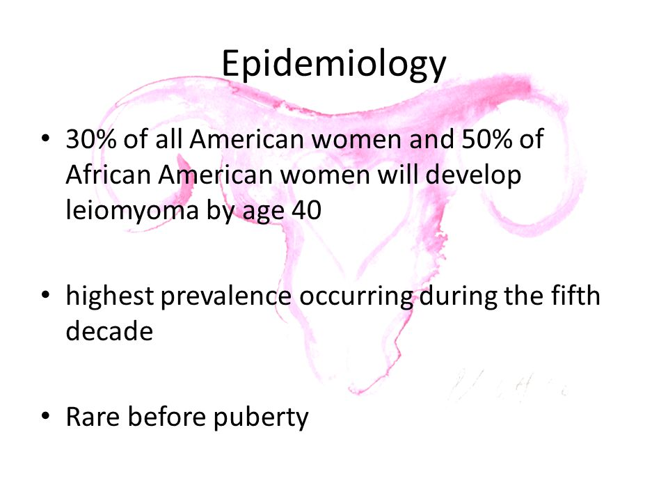 Epidemiology 30% of all American women and 50% of African American women will develop leiomyoma by age 40.