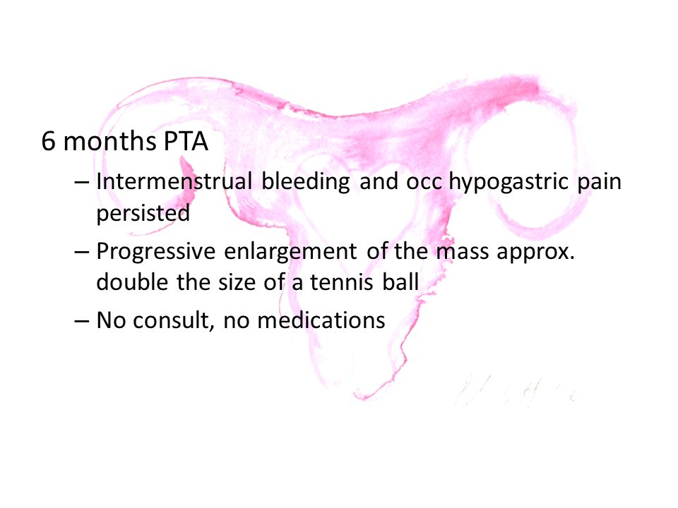 6 months PTA Intermenstrual bleeding and occ hypogastric pain persisted.