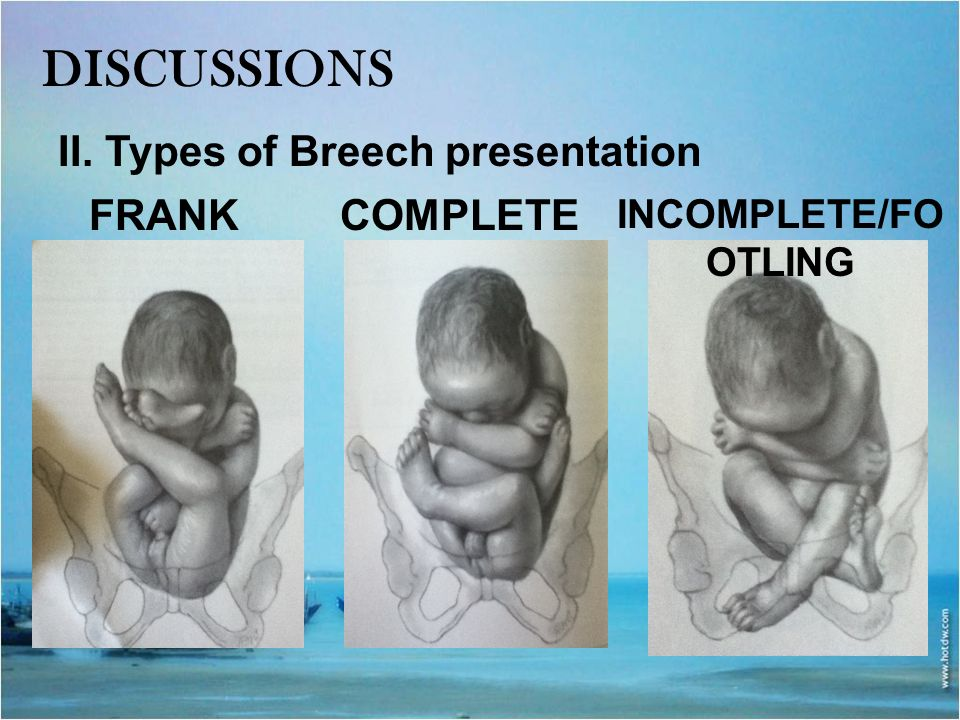 discussions II. Types of Breech presentation FRANK COMPLETE