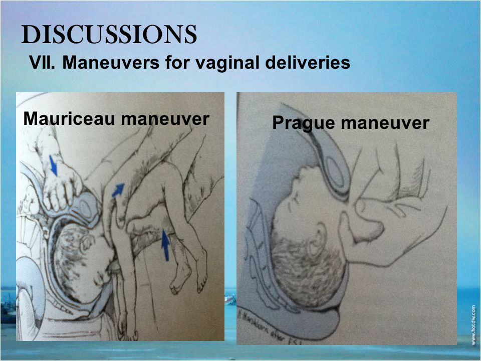 DISCUSSIONS VII. Maneuvers for vaginal deliveries Mauriceau maneuver