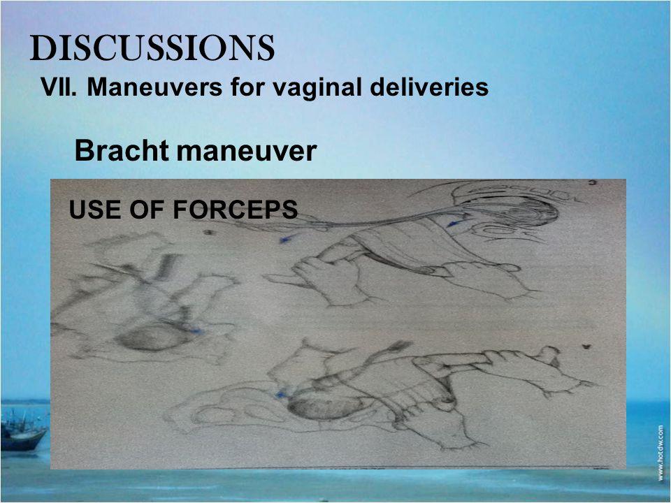 DISCUSSIONS Bracht maneuver VII. Maneuvers for vaginal deliveries
