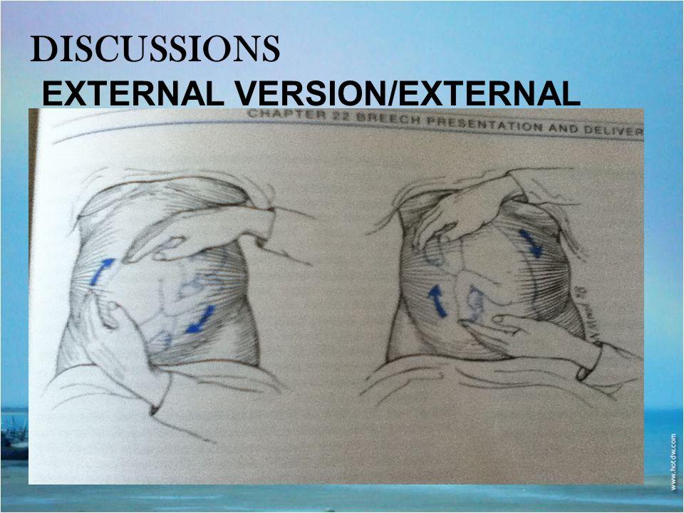 DISCUSSIONS EXTERNAL VERSION/EXTERNAL CEPHALIC VERSION