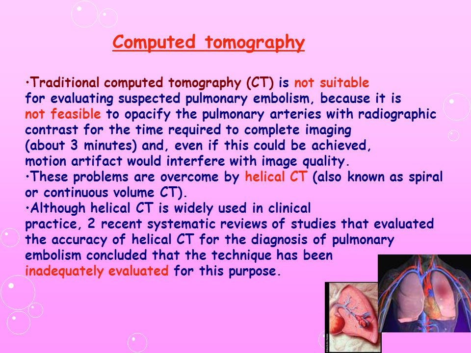 Computed tomography Traditional computed tomography (CT) is not suitable. for evaluating suspected pulmonary embolism, because it is.