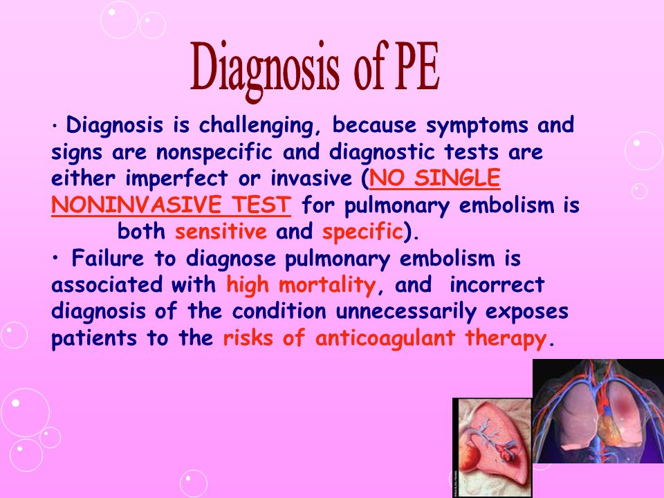 Diagnosis of PE