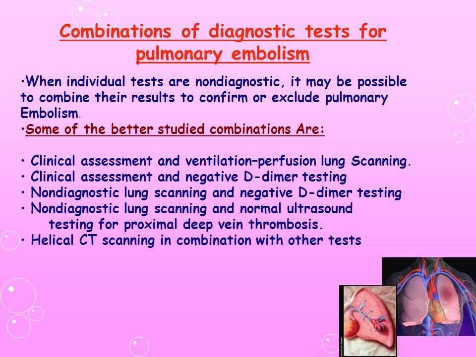 Combinations of diagnostic tests for pulmonary embolism