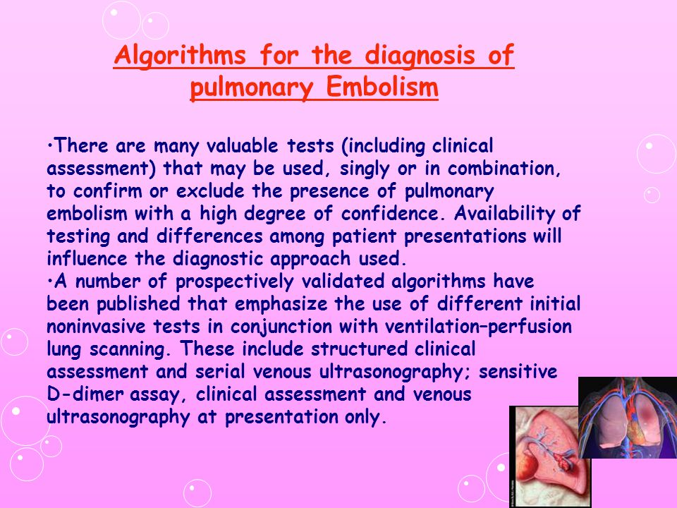 Algorithms for the diagnosis of pulmonary Embolism