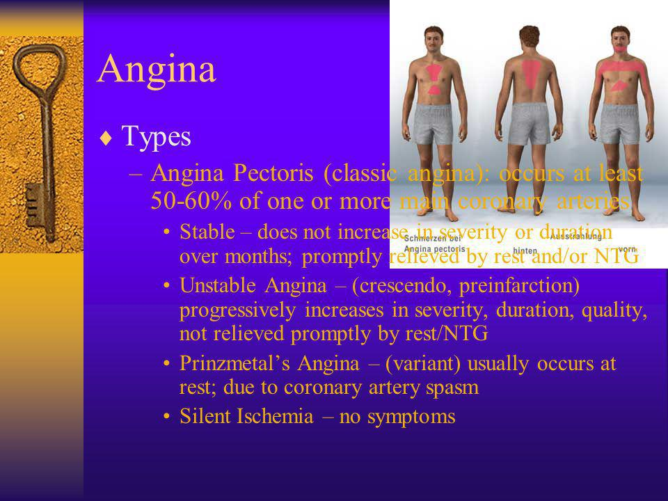 Angina Types. Angina Pectoris (classic angina): occurs at least 50-60% of one or more main coronary arteries.