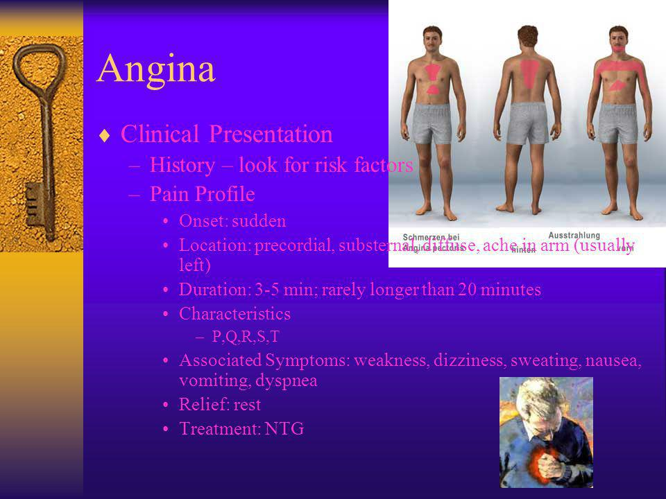 Angina Clinical Presentation History – look for risk factors