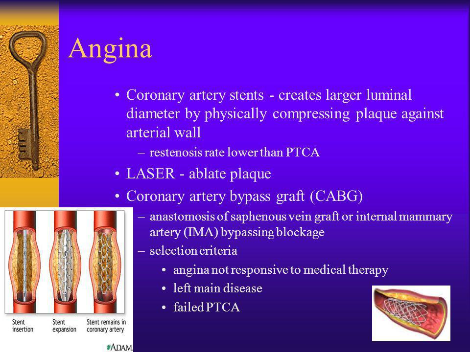 Angina Coronary artery stents - creates larger luminal diameter by physically compressing plaque against arterial wall.