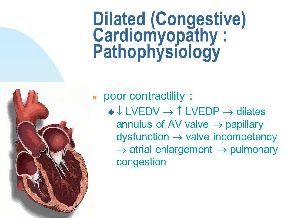 Dilated (Congestive) Cardiomyopathy : Pathophysiology