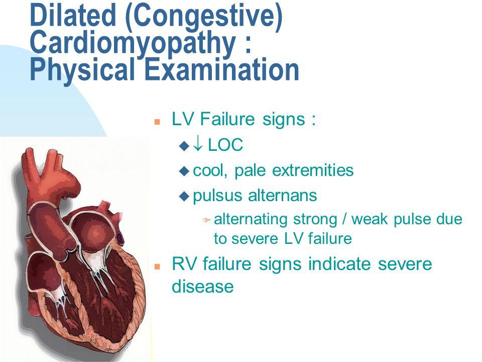 Dilated (Congestive) Cardiomyopathy : Physical Examination