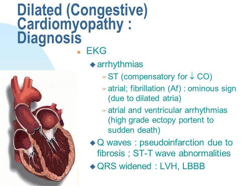 Dilated (Congestive) Cardiomyopathy : Diagnosis