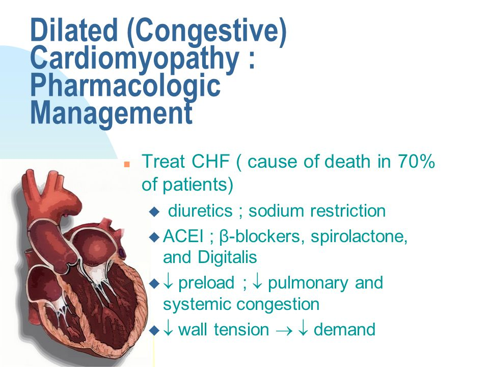 Dilated (Congestive) Cardiomyopathy : Pharmacologic Management