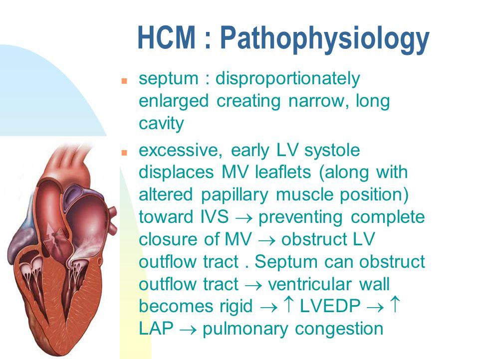 HCM : Pathophysiology septum : disproportionately enlarged creating narrow, long cavity.