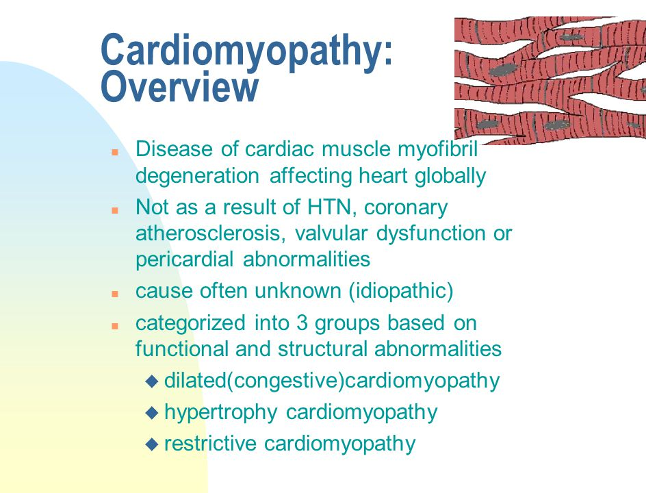 Cardiomyopathy: Overview