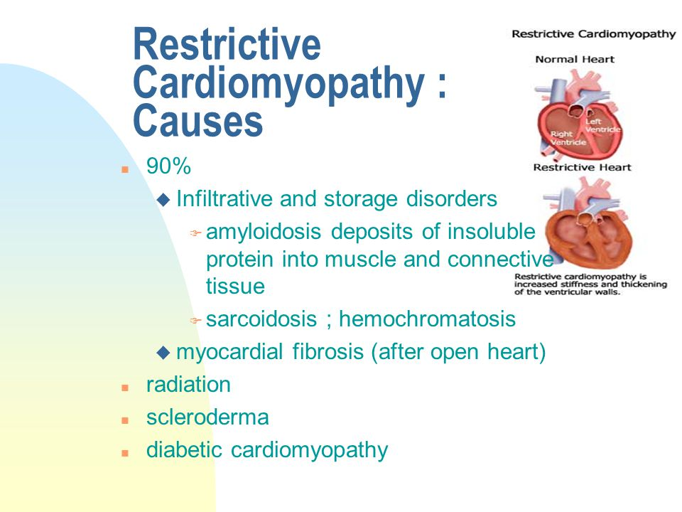 Restrictive Cardiomyopathy : Causes