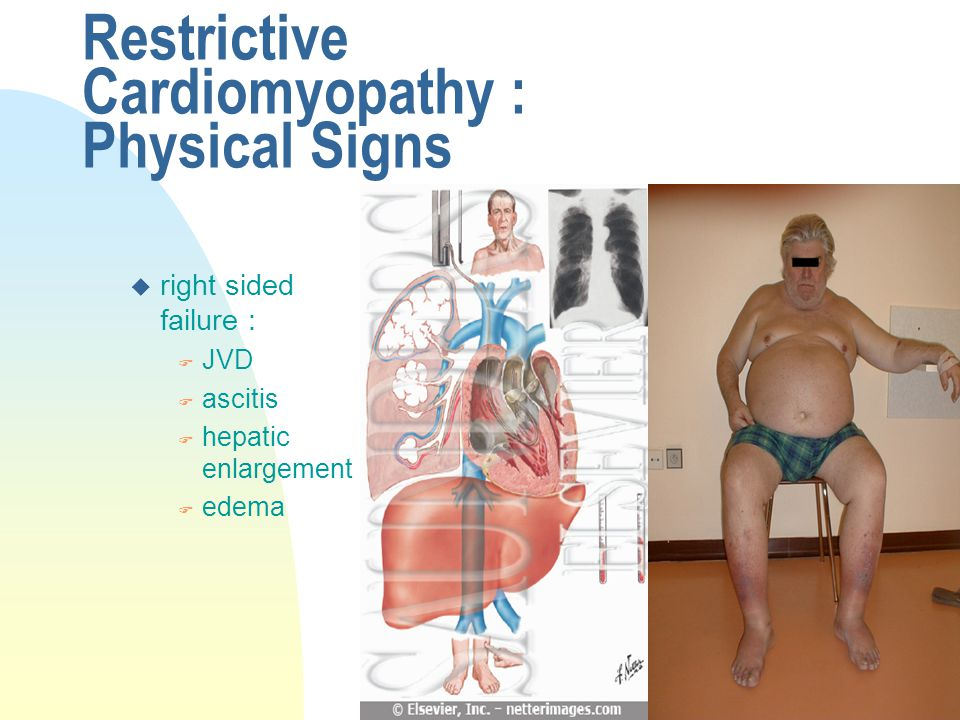 Restrictive Cardiomyopathy : Physical Signs
