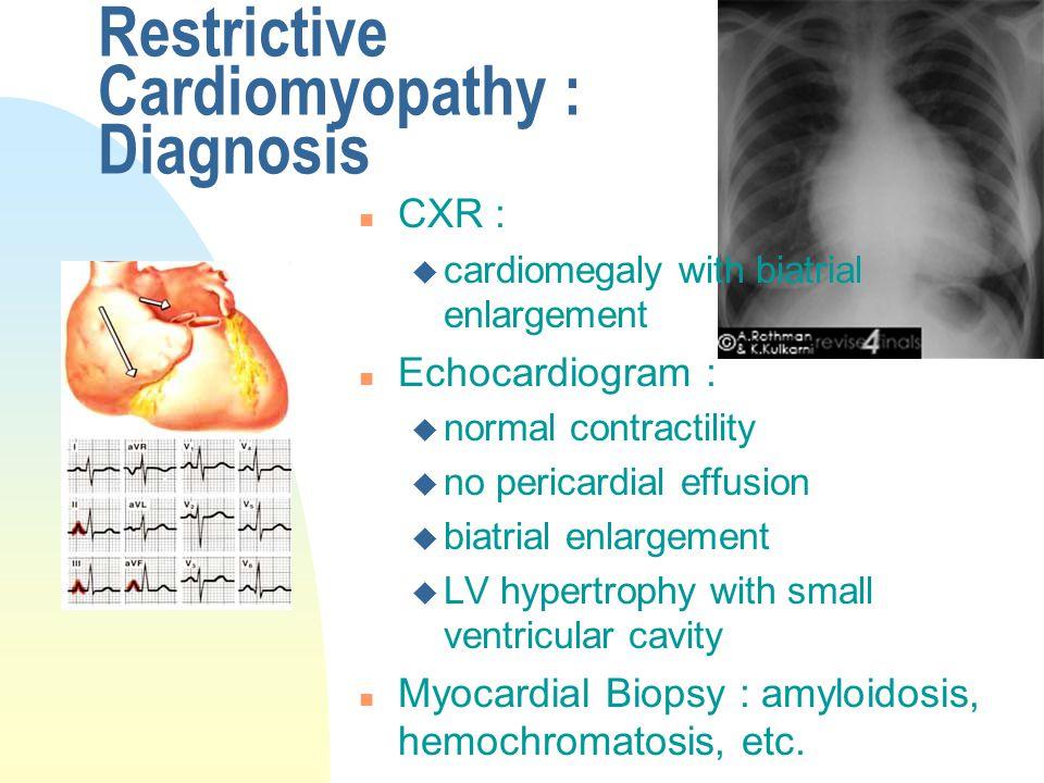 Restrictive Cardiomyopathy : Diagnosis