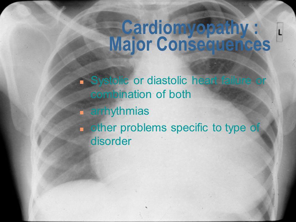 Cardiomyopathy : Major Consequences