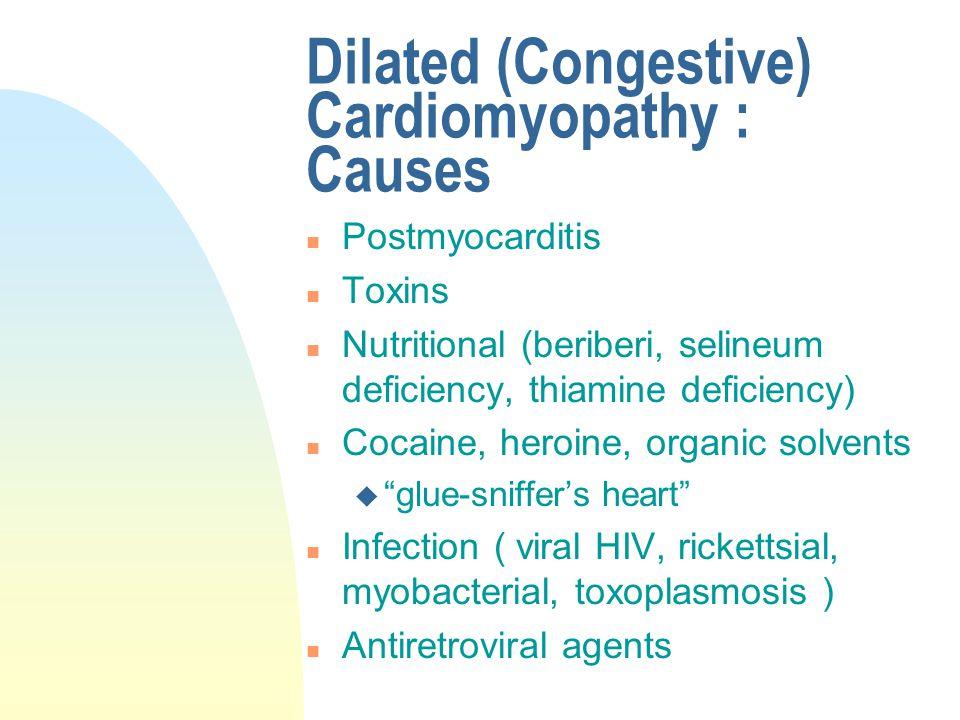 Dilated (Congestive) Cardiomyopathy : Causes