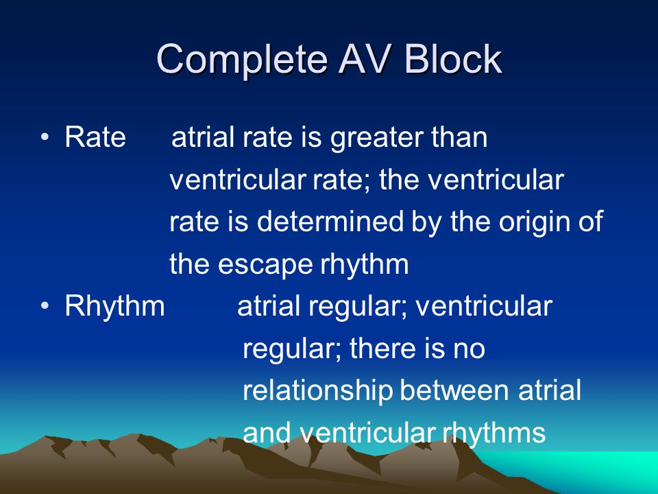 Complete AV Block Rate atrial rate is greater than