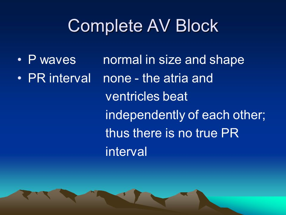 Complete AV Block P waves normal in size and shape