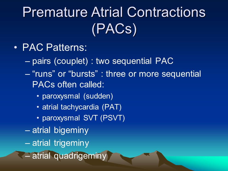 Premature Atrial Contractions (PACs)