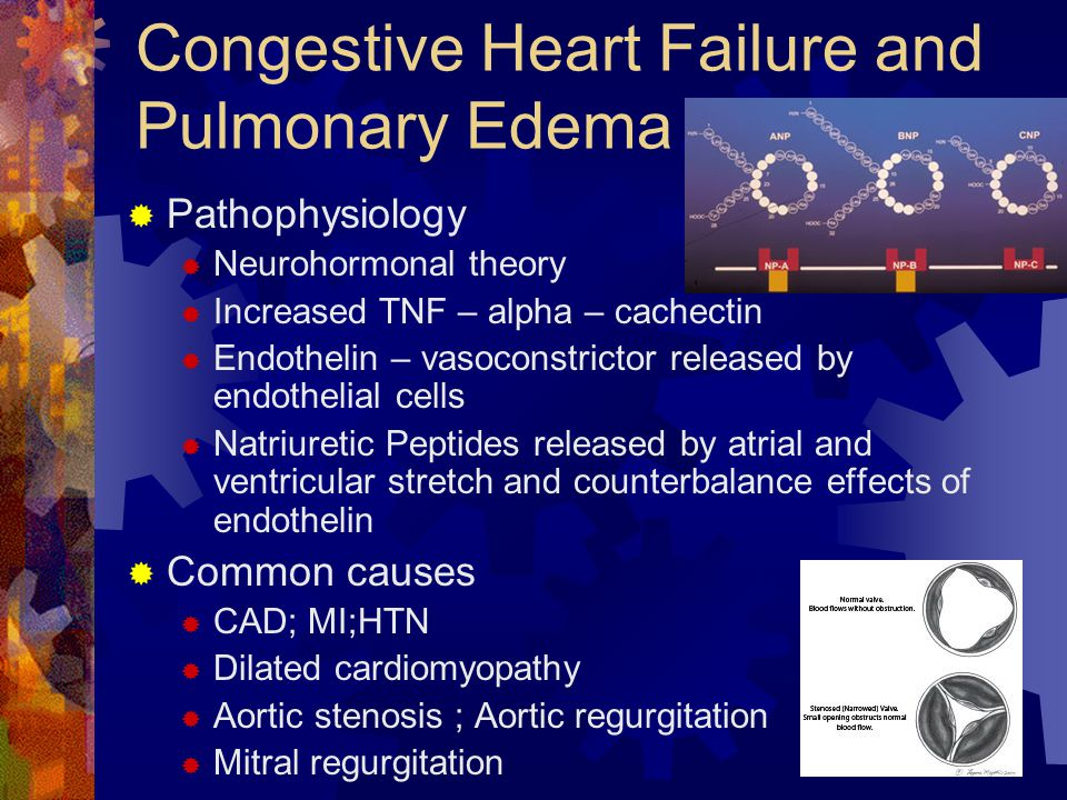 orem s theory in congestive heart failure Atwood and educational needs of patients 2000) congestive heart failure is a chronic disease that progressively decreases patients' abilities of self-care due to significant weakness that is experienced as a result of compromised cardiac and respiratory systems ramos knowledge of the disease and current social support systems.