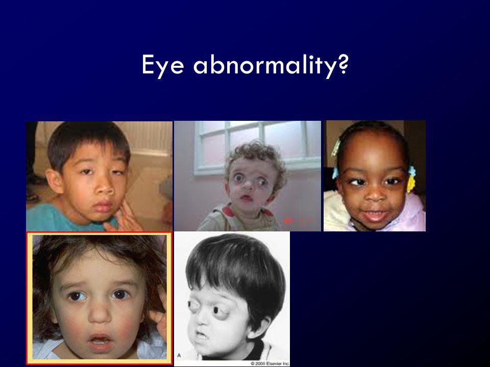 Eye abnormality