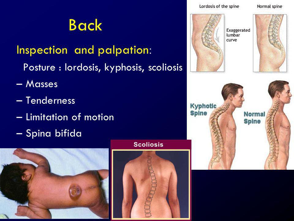 Back Inspection and palpation: Posture : lordosis, kyphosis, scoliosis