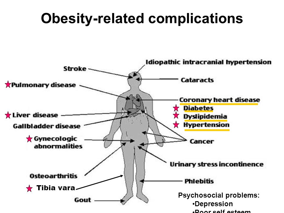 Obesity-related complications