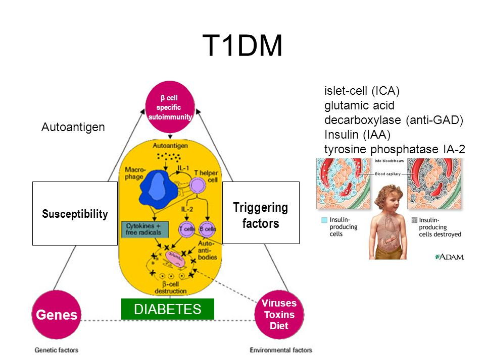 T1DM Triggering factors Genes DIABETES islet-cell (ICA)
