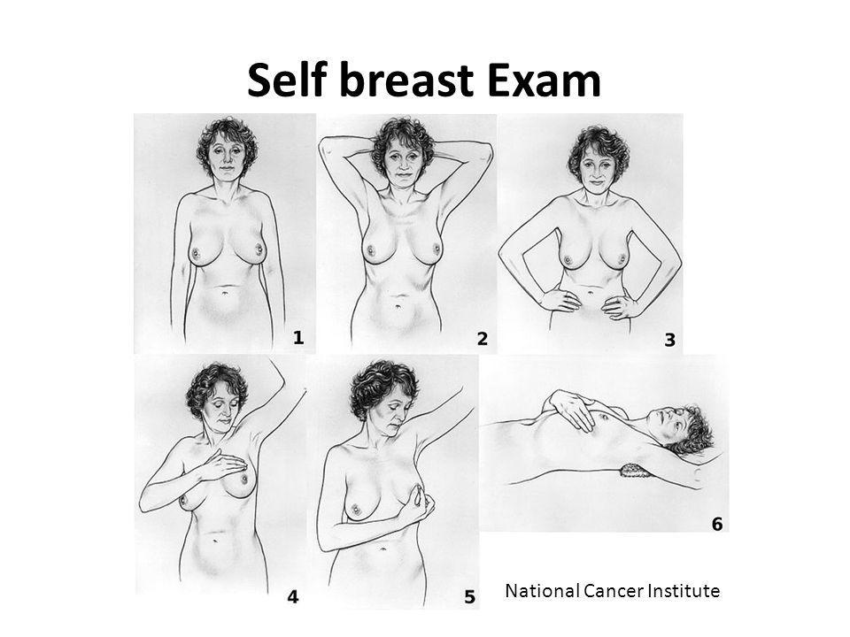 Self breast Exam National Cancer Institute