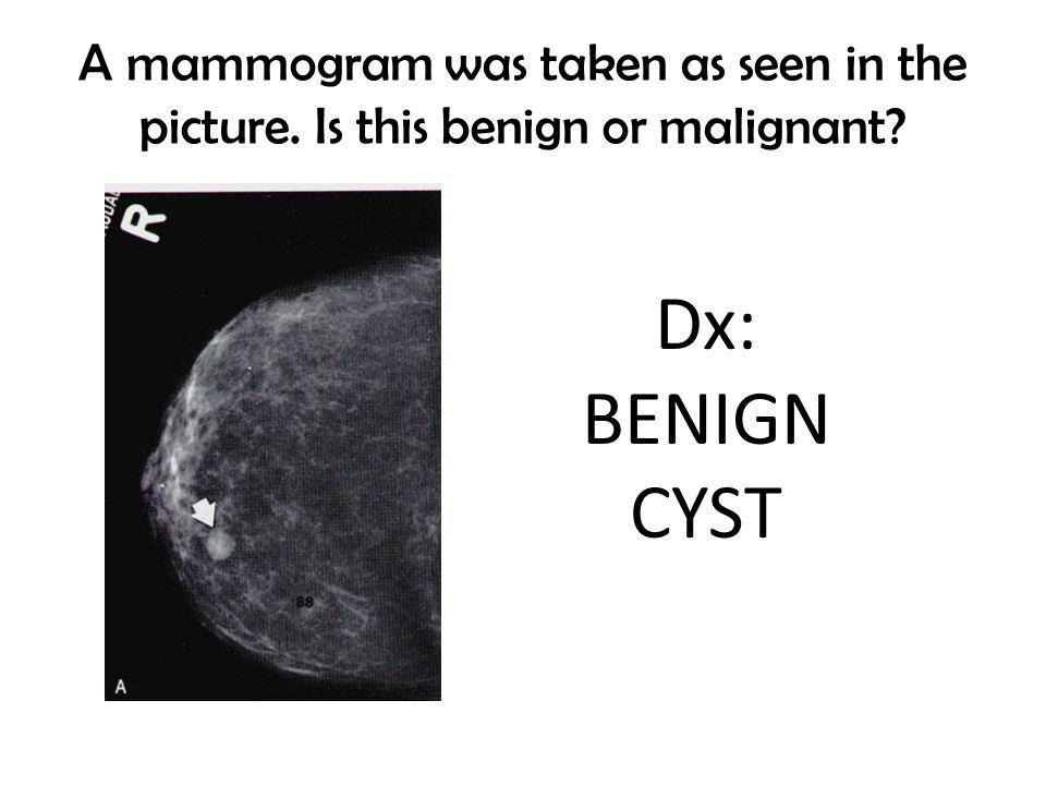 A mammogram was taken as seen in the picture