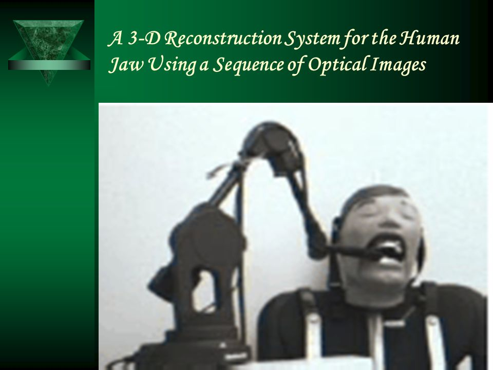 A 3-D Reconstruction System for the Human Jaw Using a Sequence of Optical Images
