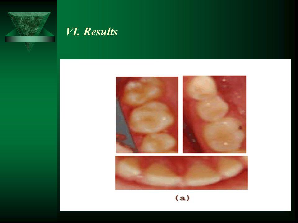 VI. Results
