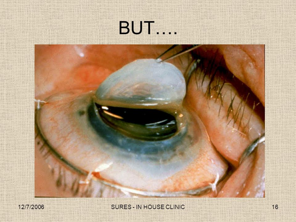 BUT…. 12/7/2006 SURES - IN HOUSE CLINIC