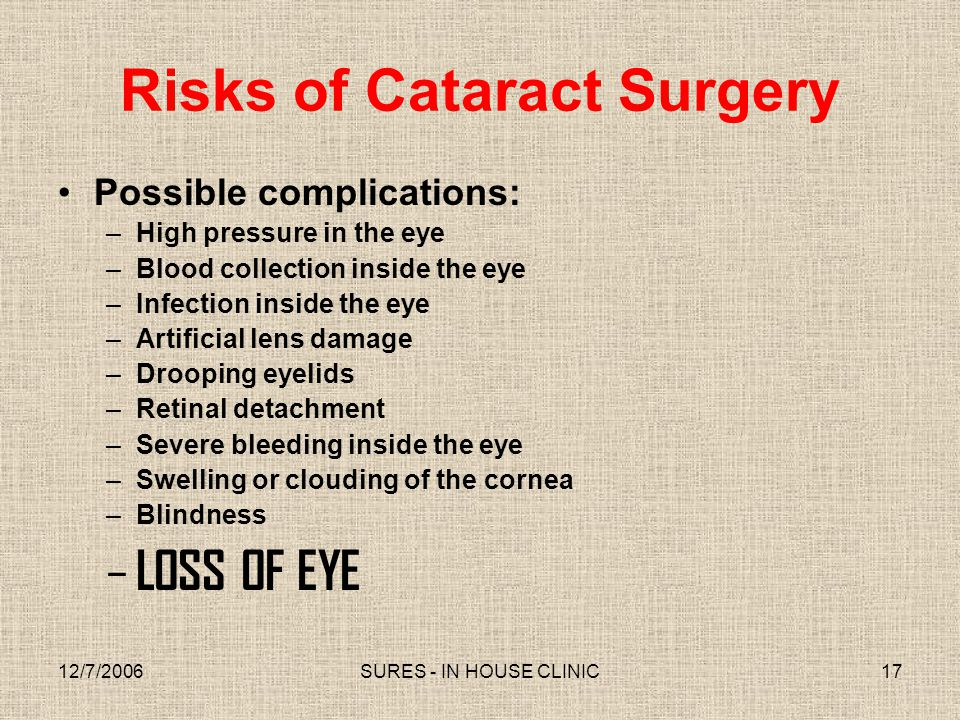 Risks of Cataract Surgery