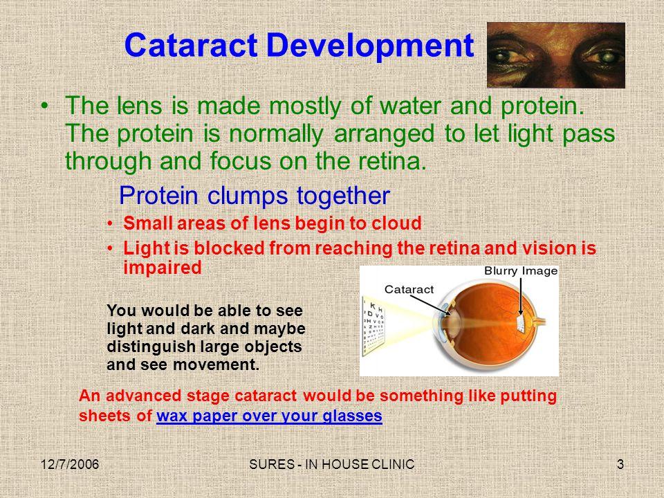 Cataract Development