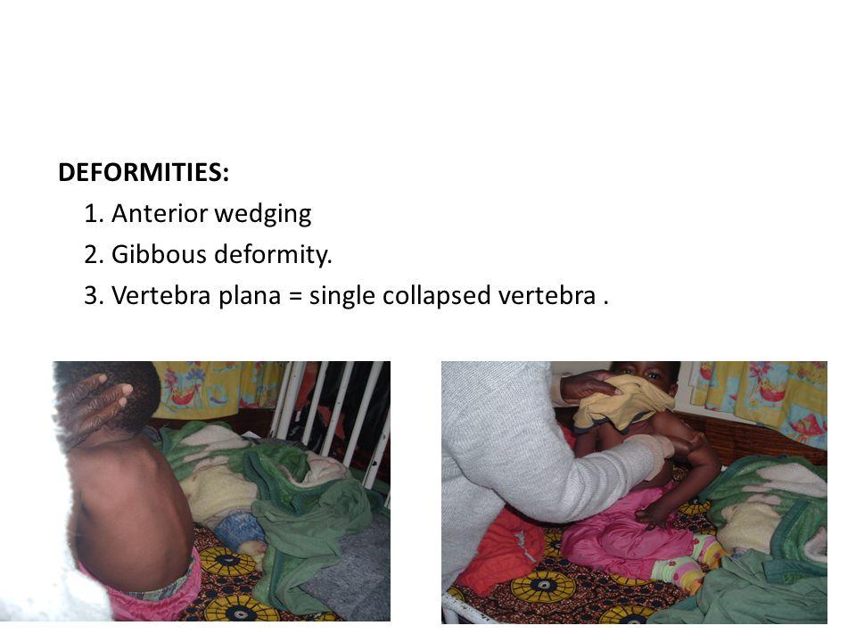 DEFORMITIES: 1. Anterior wedging 2. Gibbous deformity. 3