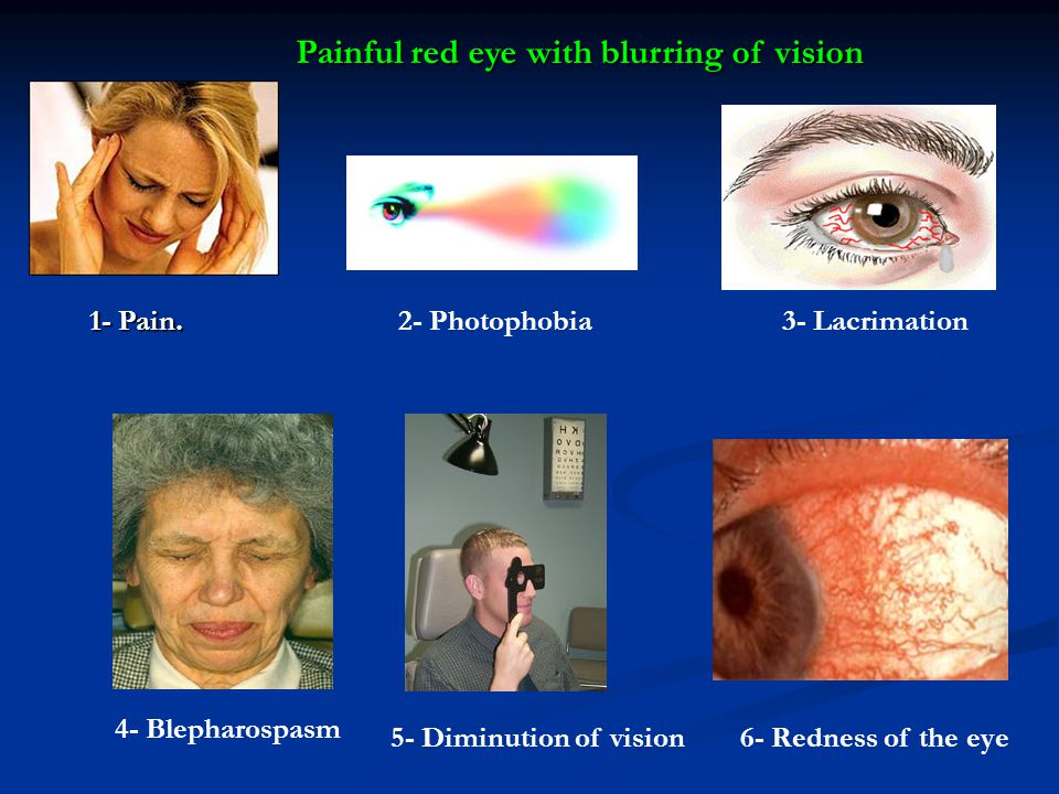 Painful red eye with blurring of vision