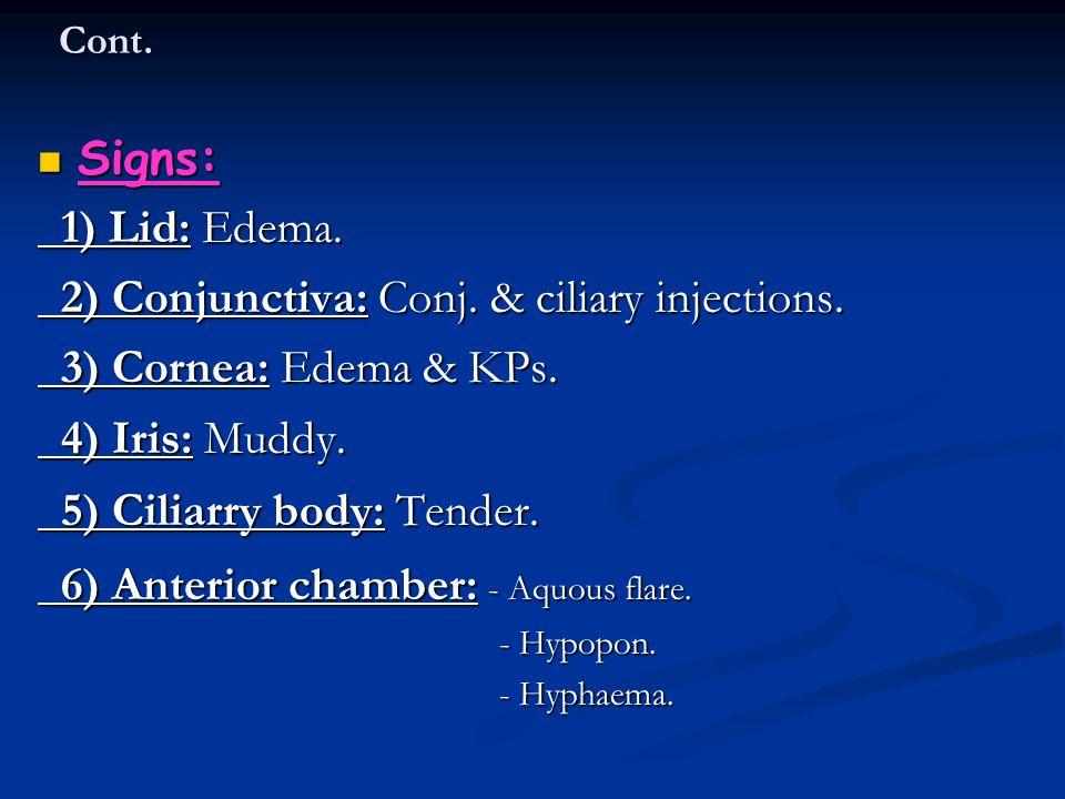 2) Conjunctiva: Conj. & ciliary injections. 3) Cornea: Edema & KPs.