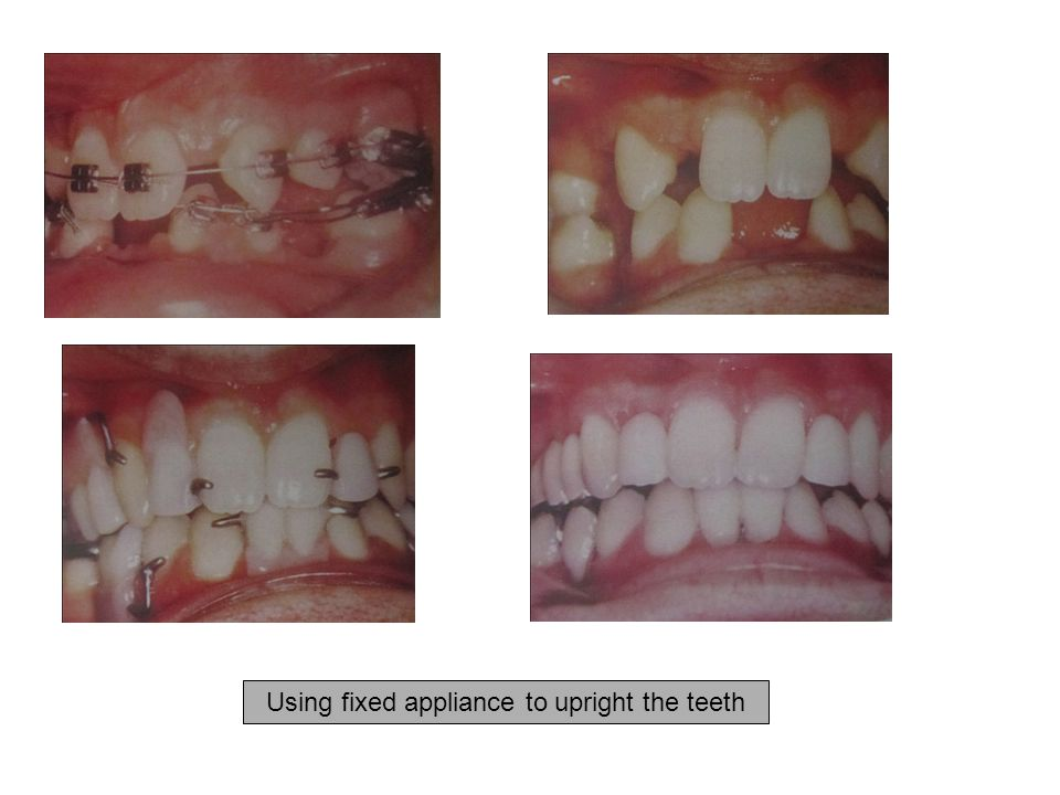 Using fixed appliance to upright the teeth