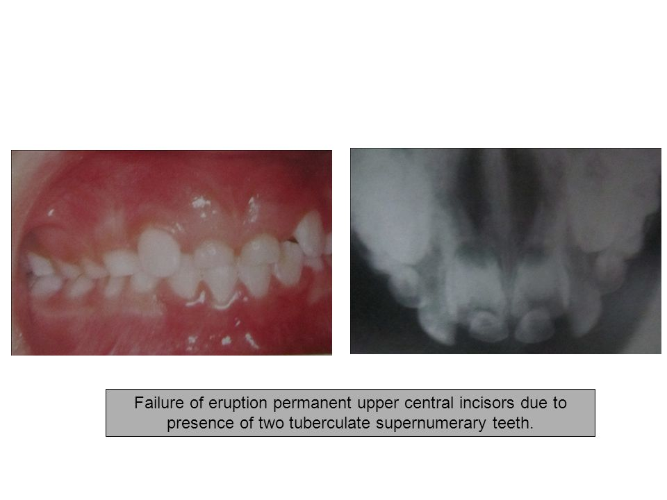 Failure of eruption permanent upper central incisors due to presence of two tuberculate supernumerary teeth.