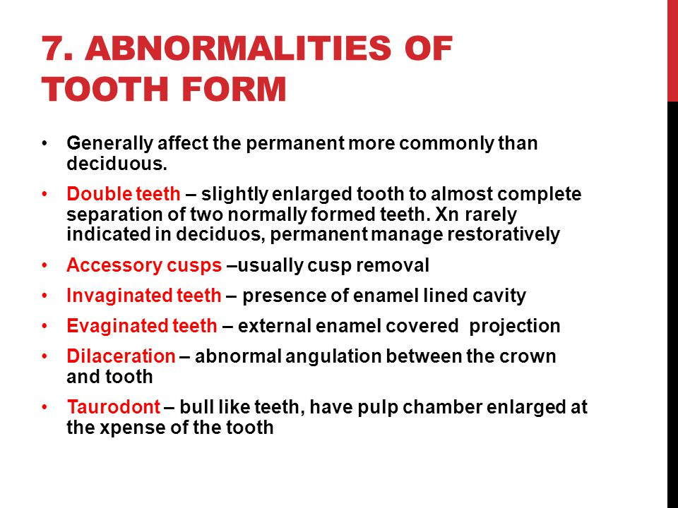 7. Abnormalities of tooth form
